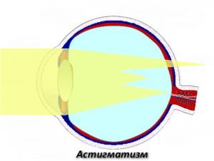 astigmatizm1